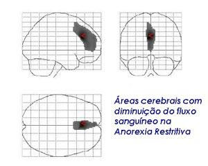 anorexiacerebral